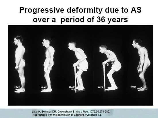 progressive deformity of AS (ankylosing spondylarthritis) over 36 years